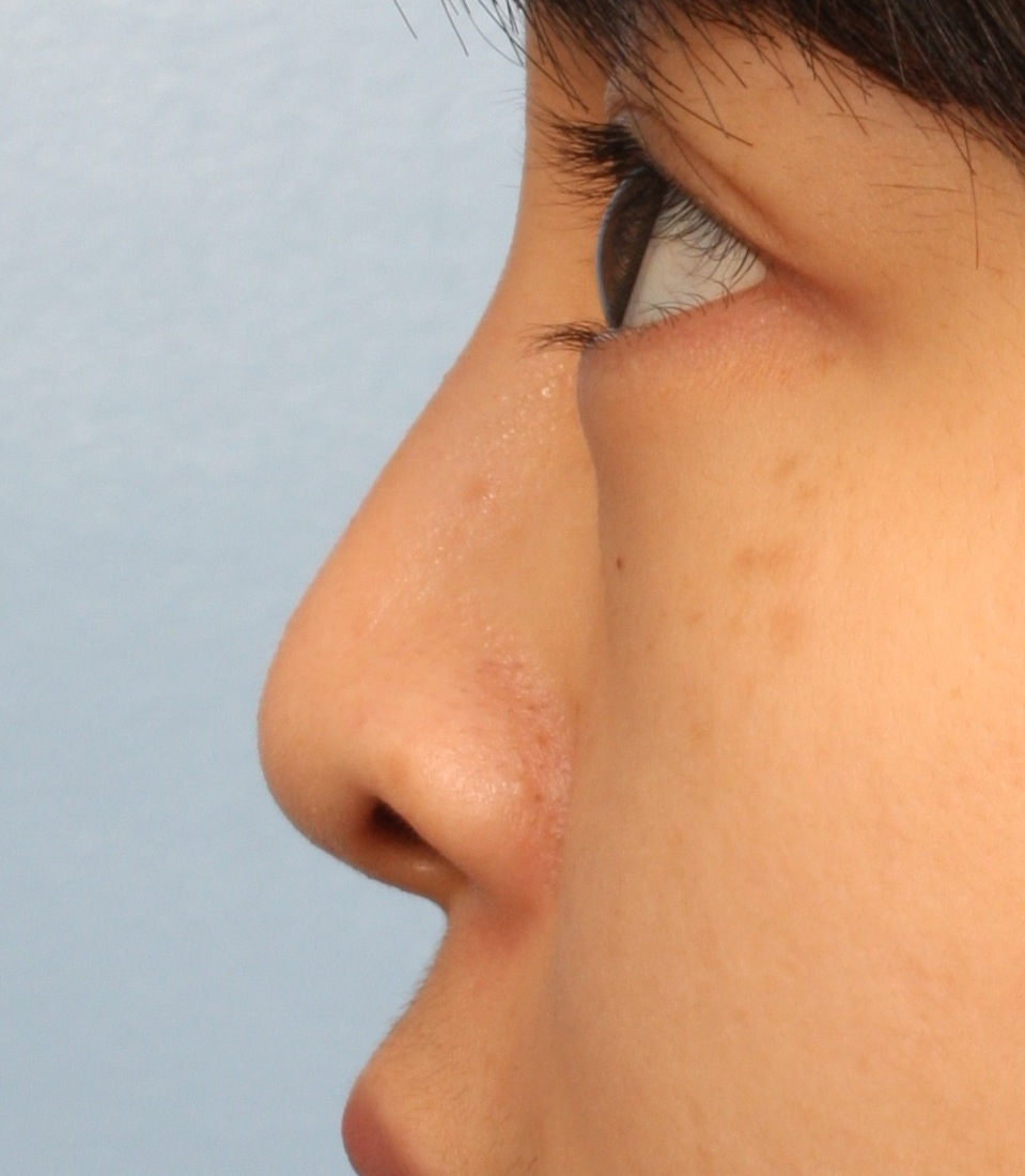 COMMON AESTHETIC CONCERNS seen in the ASIAN NOSE: Part 1