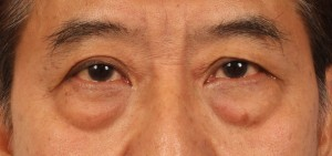 Figure 2: With aging around the eyes, the intensity radiating from the eyes gradually fades.